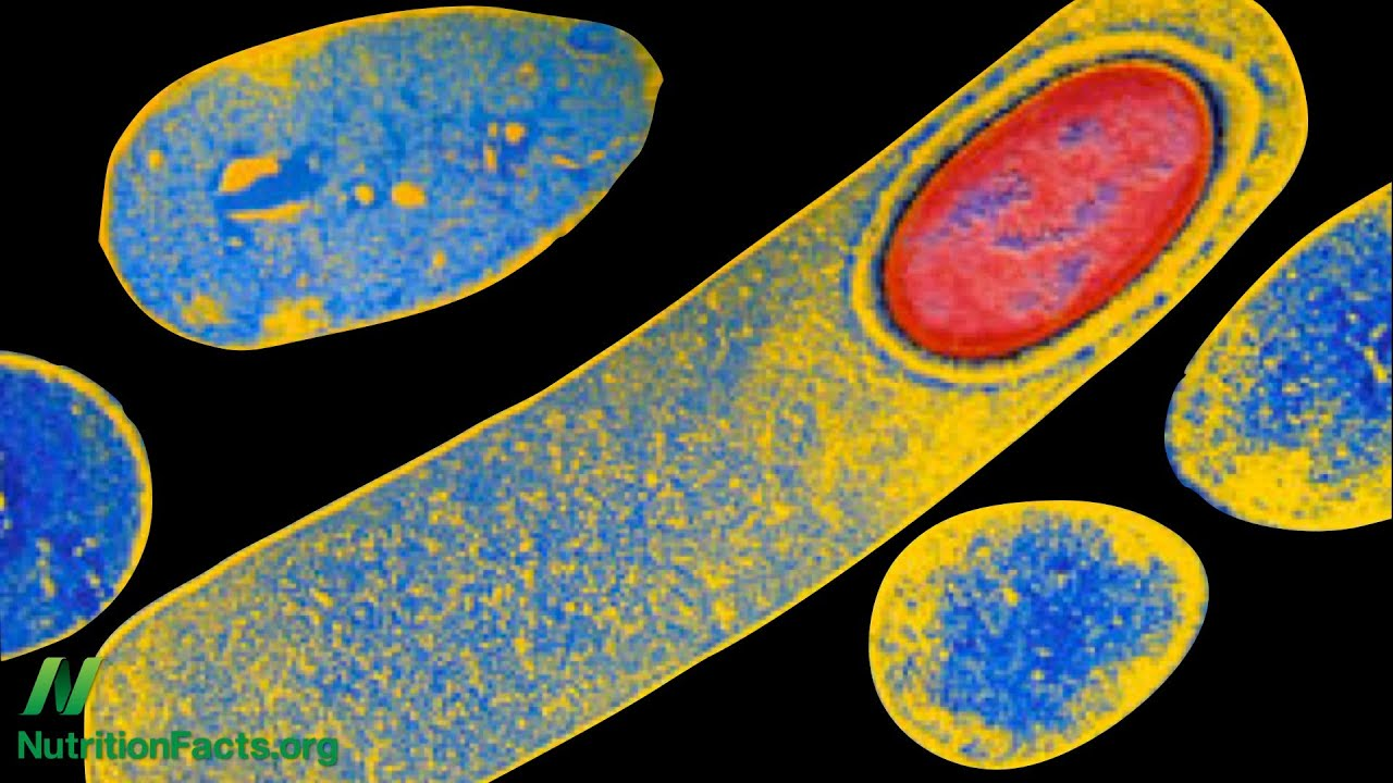 Toxic Megacolon Superbug