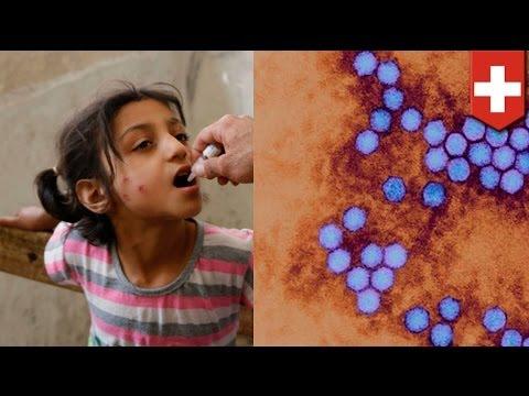 Polio outbreak: World Health Organization declares international public health emergency