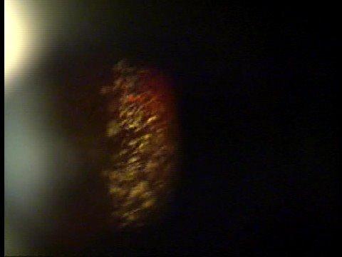 dense asteroid hyalosis-#8