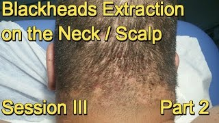 Blackheads Extraction on the Neck / Scalp -  Session III . Part 2
