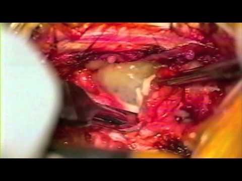 HERNIA DE DISCO LUMBAR (Microdiscectomi ́a).