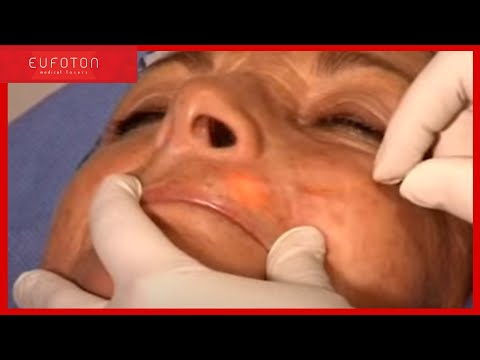 Plastic Surgery – Treatment of Endolight Lift with LASEmaR