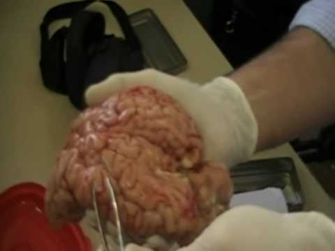 diseccion del cerebro 1