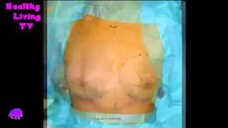 共立美容外科・歯科の豊胸術 Breast Augmentation one week experience   2013