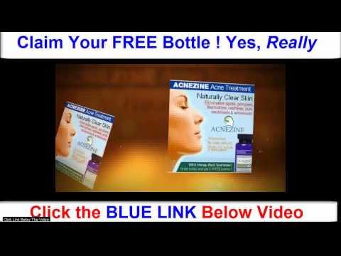 Acnezine Free Bottle Acne Treatment Reviews Acne Treatment Help