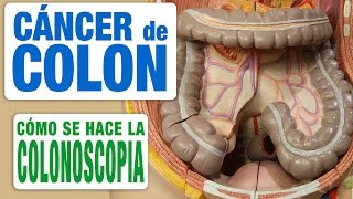 La colonoscopia óptica: La mejor Técnica para Diagnosticar un Cáncer de Colon