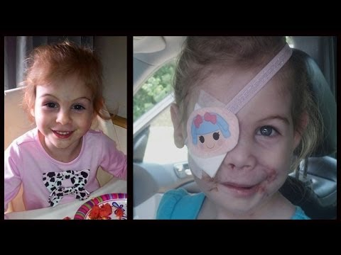 Victoria Wilcher Mauled By Pitbulls, Kfc Hoax Victim...now Helped By Doctors video
