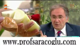 Prof  Dr  İbrahim SARAÇOĞLU Yumurtalikta Kist