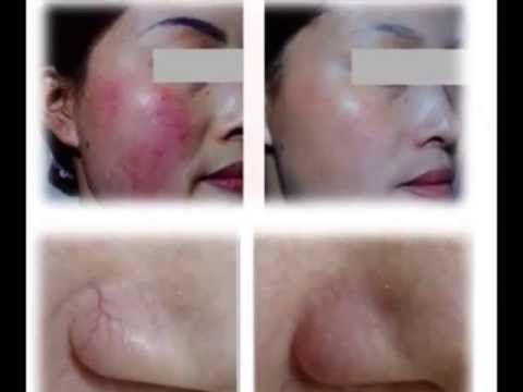 Thermo-cell Skin Blendling Therapy System-Spider veins removal. Skin Tags. Skin blender. age spots