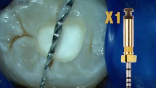 Dentsply Core&Post System