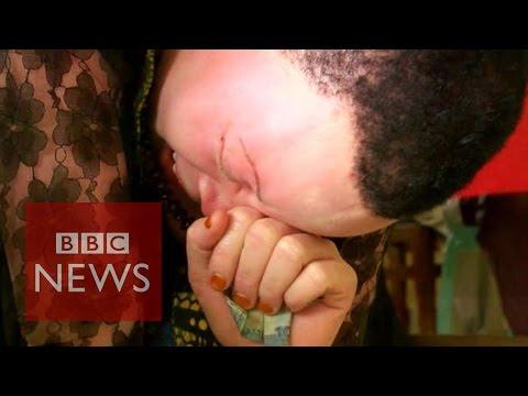 Albinos in Tanzania: 'killed like animals'