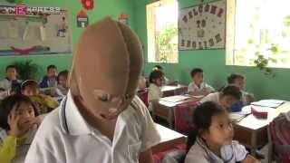 Cậu bé bỏng toàn thân, đeo mặt nạ tới trường