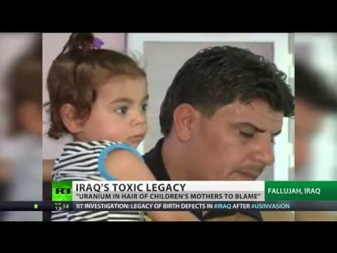 BBC Silent - Confirmed - Iraqi babies born deformed ARE due to US weapons made with uranium