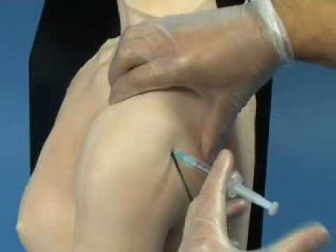 Limbs & Things Shoulder for Joint Injection