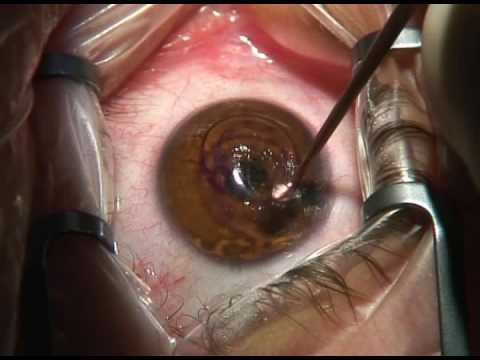 Keraring ICRS for keratoconus side camere view
