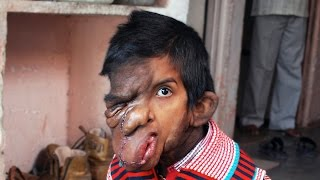Facial Tumour: Community Rallies To Give Boy New Hope