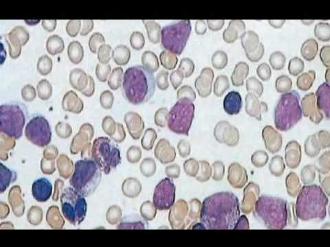 Blood Cancers - Signs and Symptom and Treatments