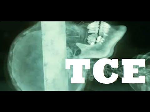 TCE Traumatismo Craneoencefálico