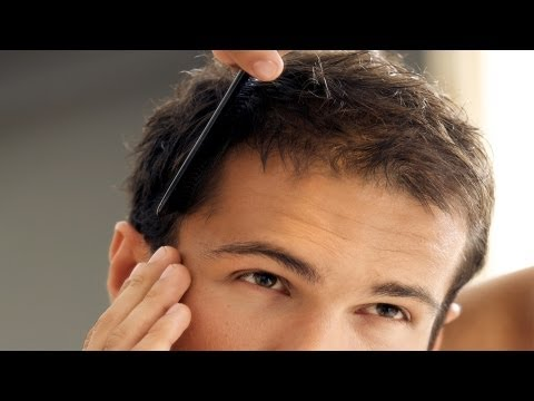 How to Treat Balding Hair | Thinning Hair and Baldness