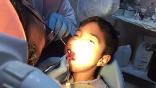Canlı Diş Dolgusu Yaptırdım