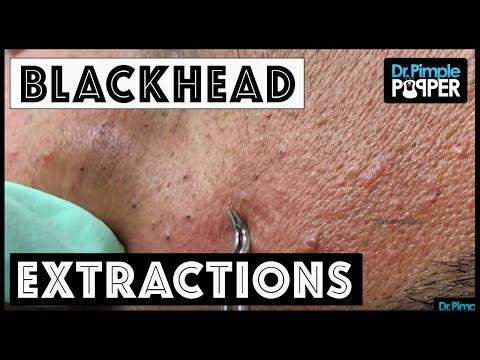 A Blackhead Extractor & Tweezer Dance