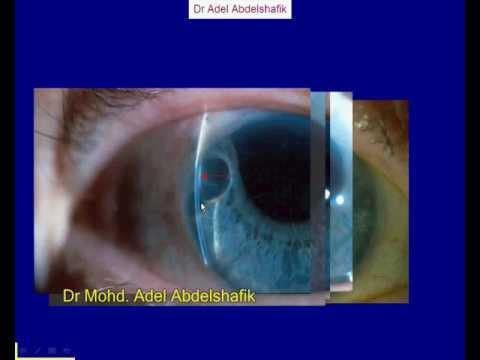 Eye Exam Dog Video