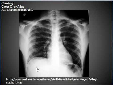 Chest X Ray Pneumoperitonuem Air Under Diaphragms Youtube