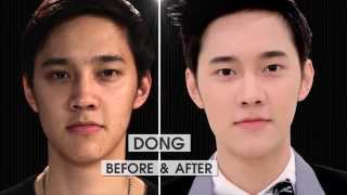 Acne Program By Meko Clinic