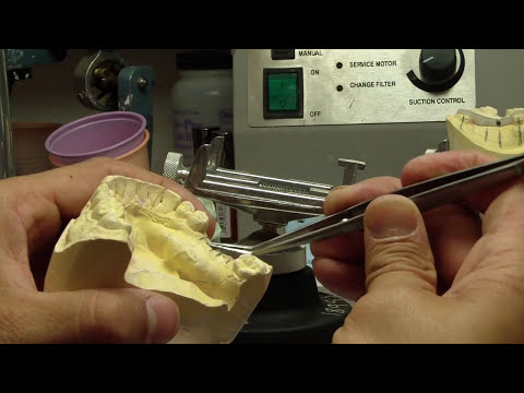 How to Make an Implant Stent Part 1 - What you need