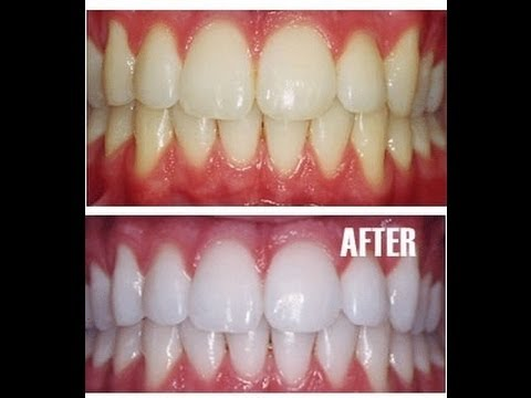 How To Get Permanent White Teeth Naturally