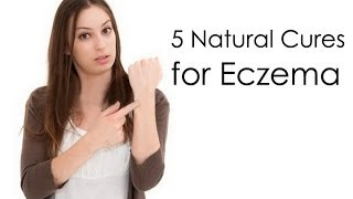 How to Cure Eczema Fast : 5 Natural Cures for Eczema