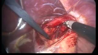 laparoskopik reflü ameliyatı 15 dakika - laparoscopic nissen fundoplication 15 min