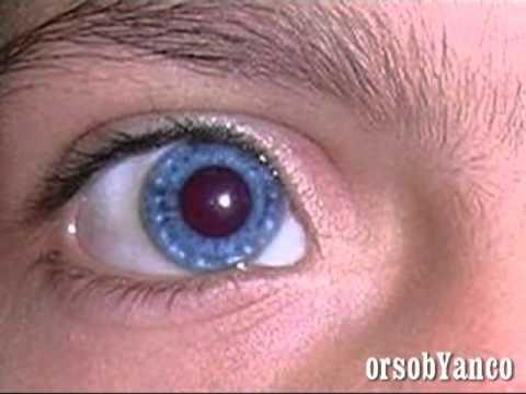 Cambiare colore agli occhi definitivamente youtube - Colore degli occhi diversi ...