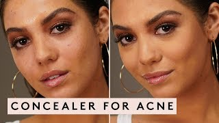 CONCEALER FOR ACNE | FENTY BEAUTY