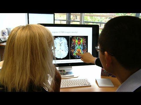 Development of MRI Biomarkers to measure disease progression in Early Parkinson's Disease