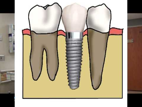 Dental Crowns, Bridges, and Implants - Simply Explained