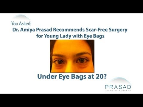 Scar-Free Surgery Recommended for Young Lady with Puffy Eye Bags