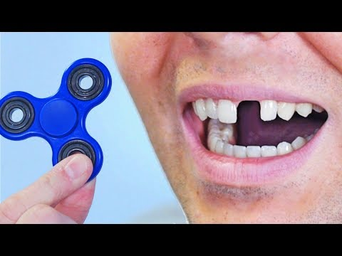 FIDGET SPINNER TOY ACCIDENT! thumbnail