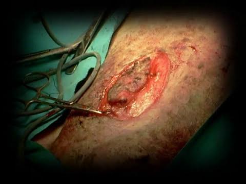 mastectomia en perra