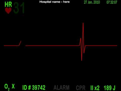 ekg monitor simulation