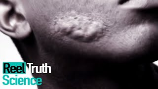 The Man Covered in Boils | Mystery Diagnosis | ReelTruth #Science
