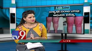 Varicose veins - Latest treatment - Lifeline