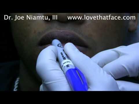 Уменьшение губ. Определение избытков тканей