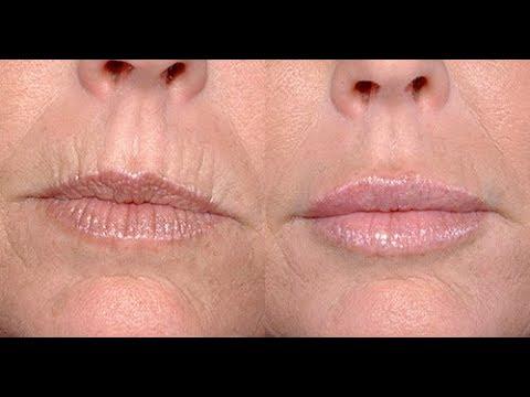 Кисетные морщины вокруг рта- самые простые упражнения для коррекции.