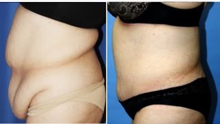 Abdominoplasty - Tummy Tuck Plastic Surgery by Dr. Cat