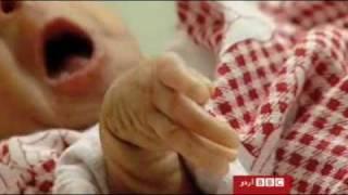 fallujahs deformed children  after the us war