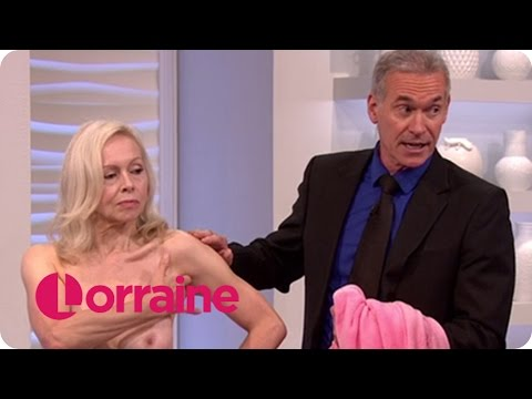 How To Check For Breast Cancer   Lorraine