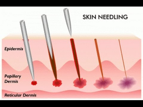 Can Micro Needling Get Rid of Acne Scars