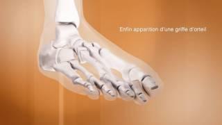 Histoire évolutive de l'hallux valgus et complications - Chirurgie du pied - Clinique du Parc Lyon