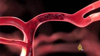 دراسة: أجهزة إزالة الجلطات الدموية أفضل لصحة المريض